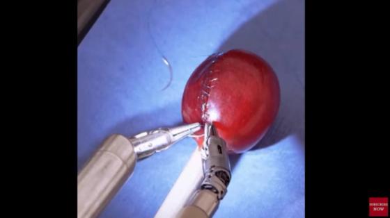 15臺正在改變世界的醫療機器人:daVinci縫補葡萄皮